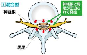 脊柱管狭窄症「混合方」の説明画像