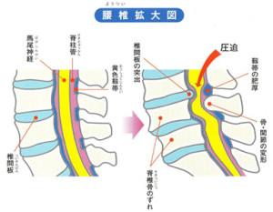 脊柱管狭窄症、矢状面の説明画像