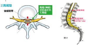 尾神経、脊柱管狭窄症の症状「馬尾型」の説明画像
