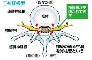 脊柱管狭窄症の神経根型の説明画像