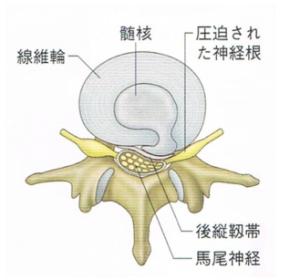 椎間板ヘルニア 髄核の画像